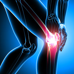 Treatment of knee and hip osteoarthritis with tanezumab added to NSAIDS: results of a large phase III trial