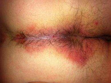 La maladie des reins du foie le psoriasis
